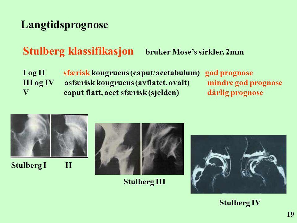 Stulberg klassifikasjon bruker Mose's sirkler, 2mm