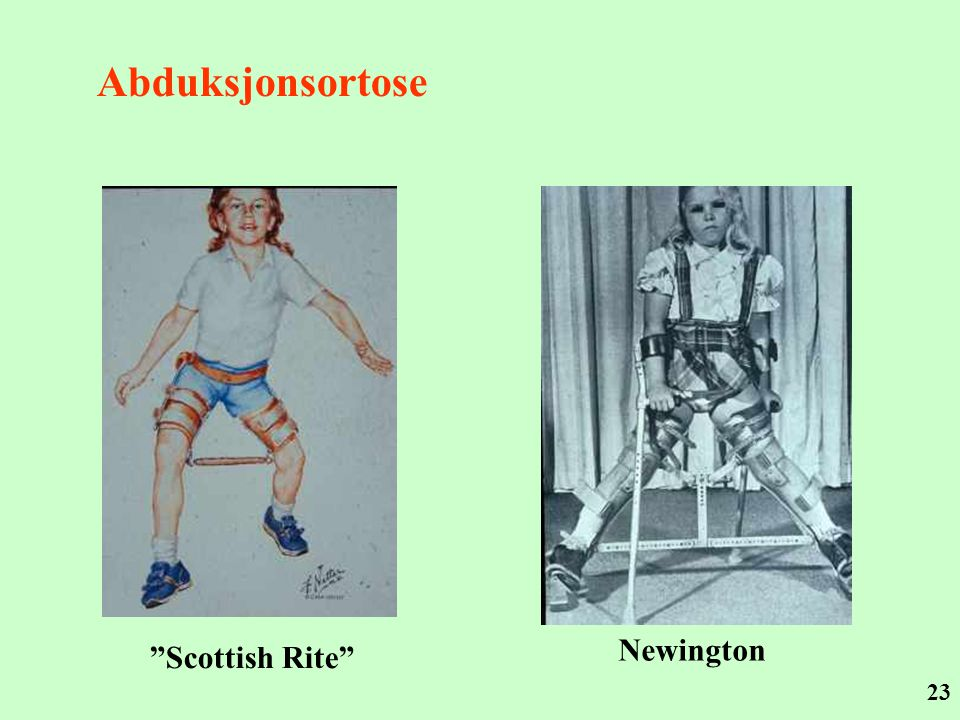 Abduksjonsortose Newington Scottish Rite