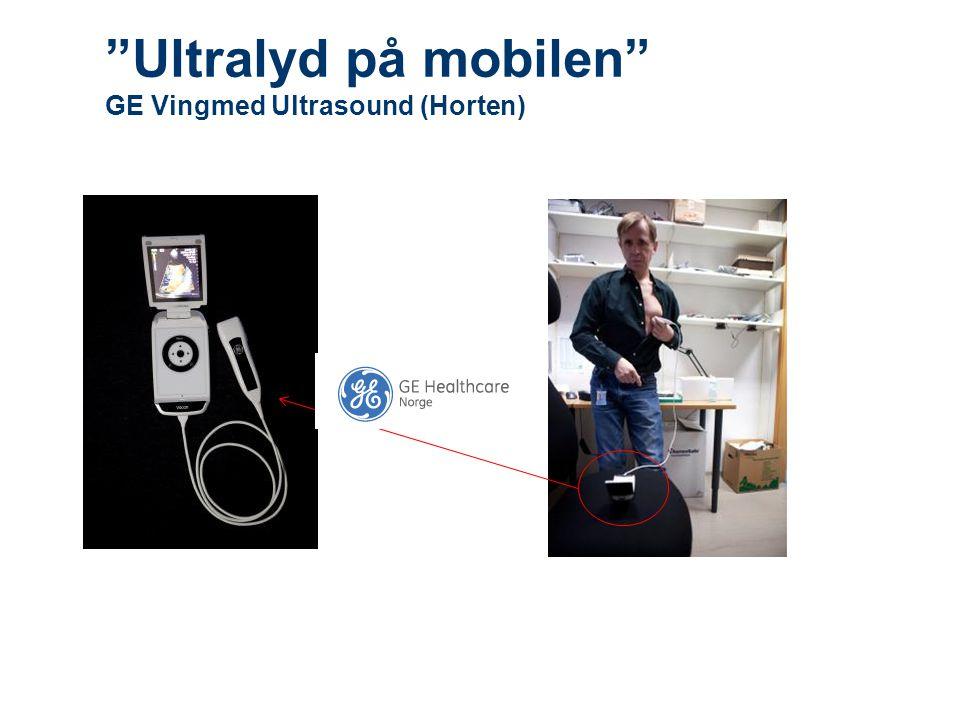Ultralyd på mobilen GE Vingmed Ultrasound (Horten)
