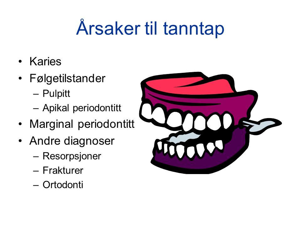 Årsaker til tanntap Karies Følgetilstander Marginal periodontitt
