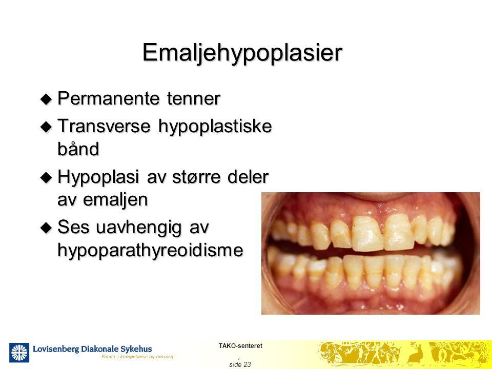 Emaljehypoplasier Permanente tenner Transverse hypoplastiske bånd