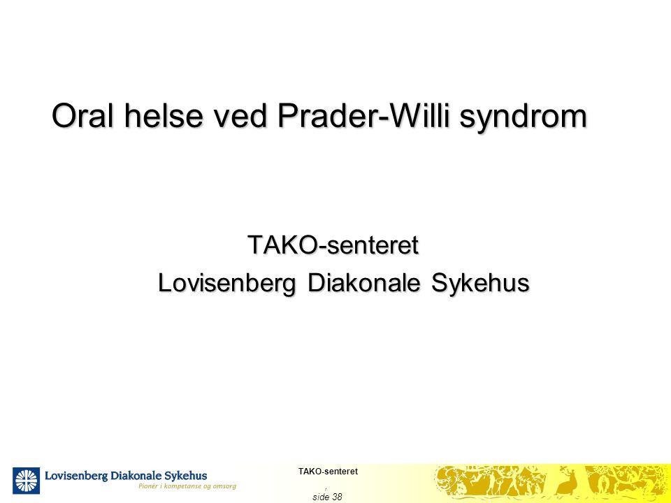 Oral helse ved Prader-Willi syndrom