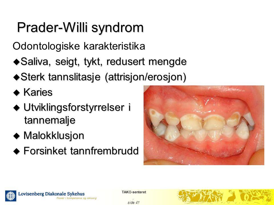 Prader-Willi syndrom Odontologiske karakteristika