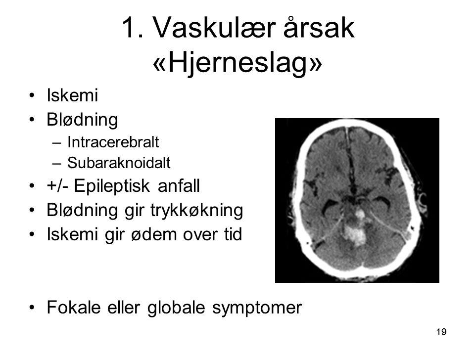 1. Vaskulær årsak «Hjerneslag»