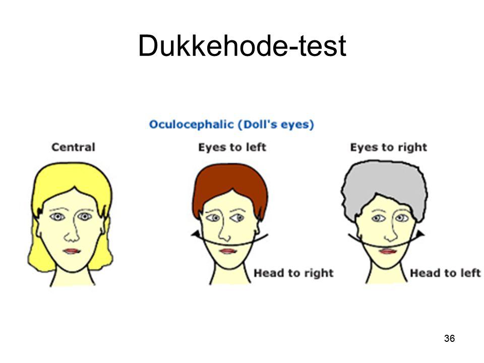 Dukkehode-test 36