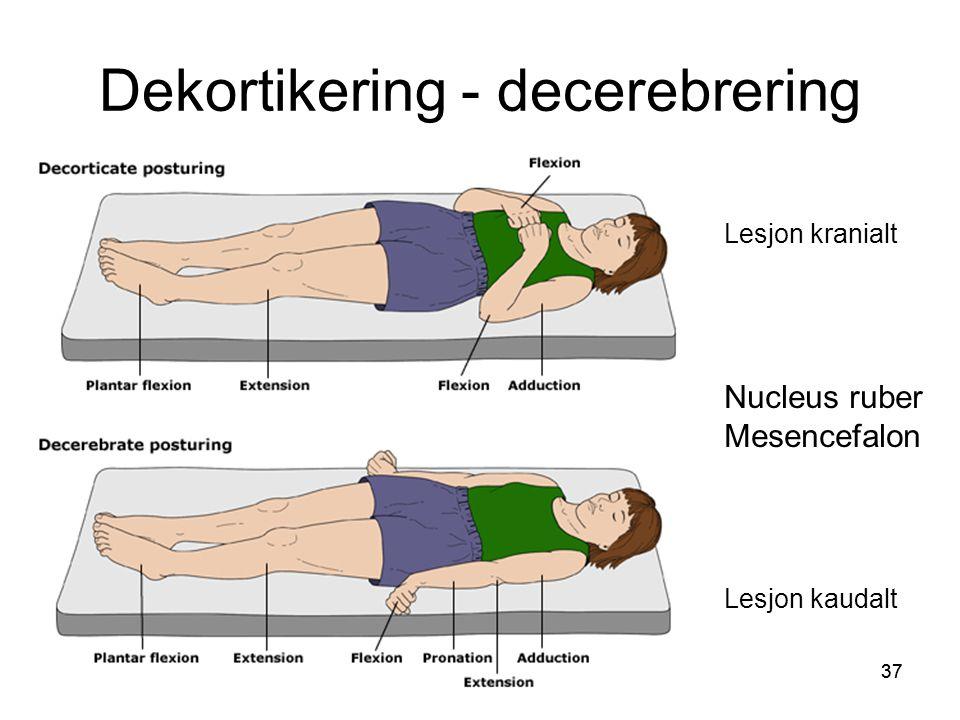 Dekortikering - decerebrering