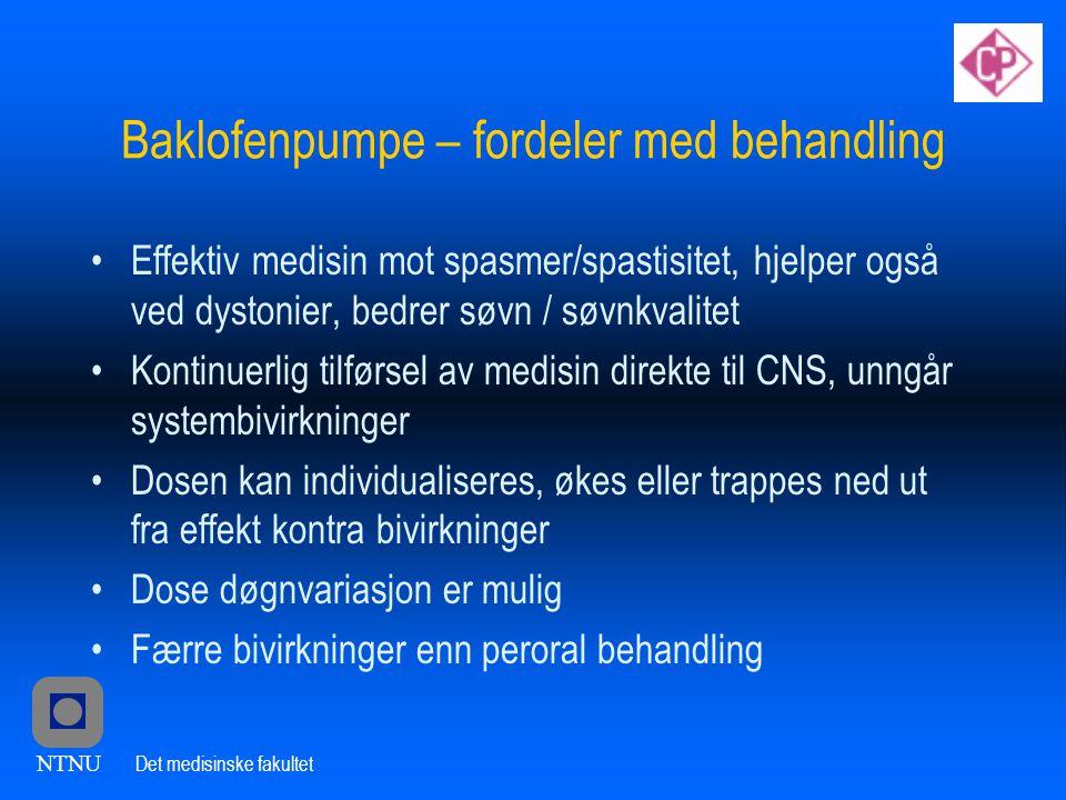 Baklofenpumpe – fordeler med behandling