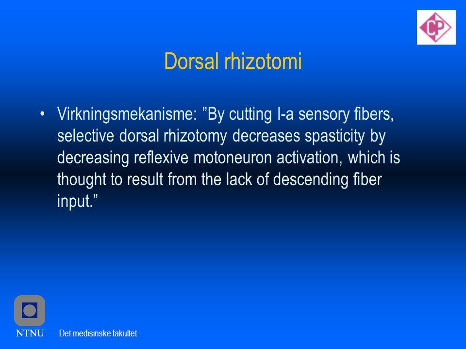 Dorsal rhizotomi