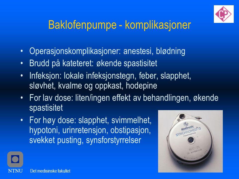 Baklofenpumpe - komplikasjoner