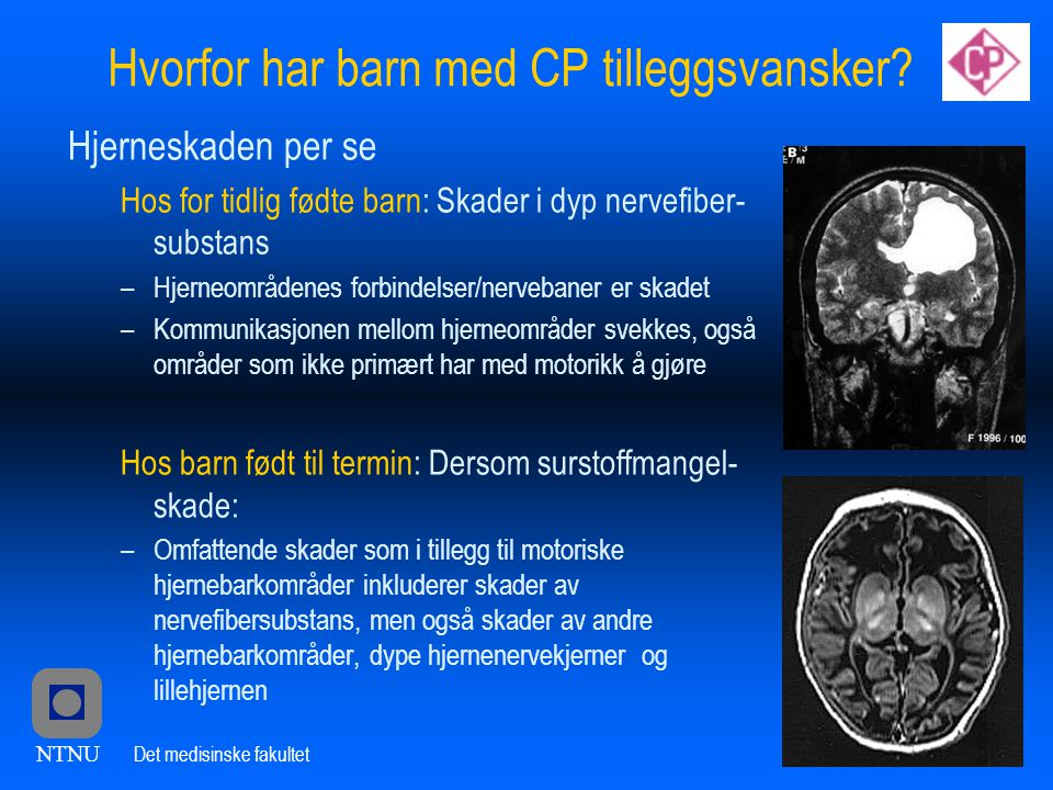 Hvorfor har barn med CP tilleggsvansker