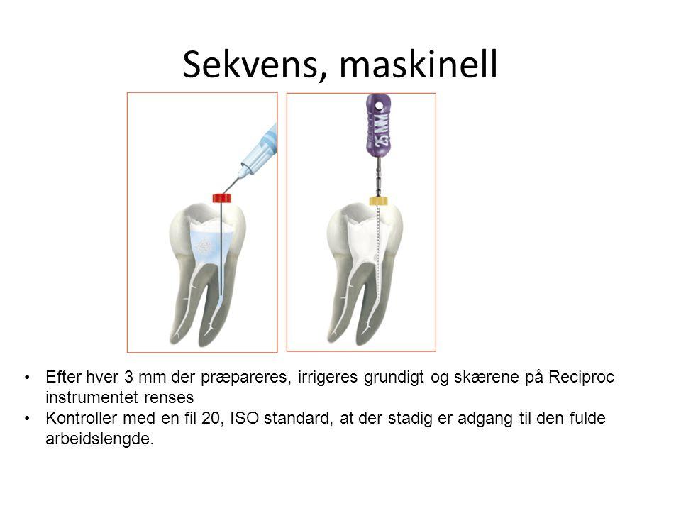 Sekvens, maskinell Efter hver 3 mm der præpareres, irrigeres grundigt og skærene på Reciproc instrumentet renses.