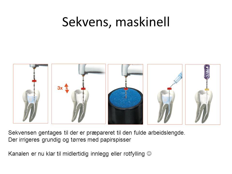 Sekvens, maskinell Sekvensen gentages til der er præpareret til den fulde arbeidslengde. Der irrigeres grundig og tørres med papirspisser.