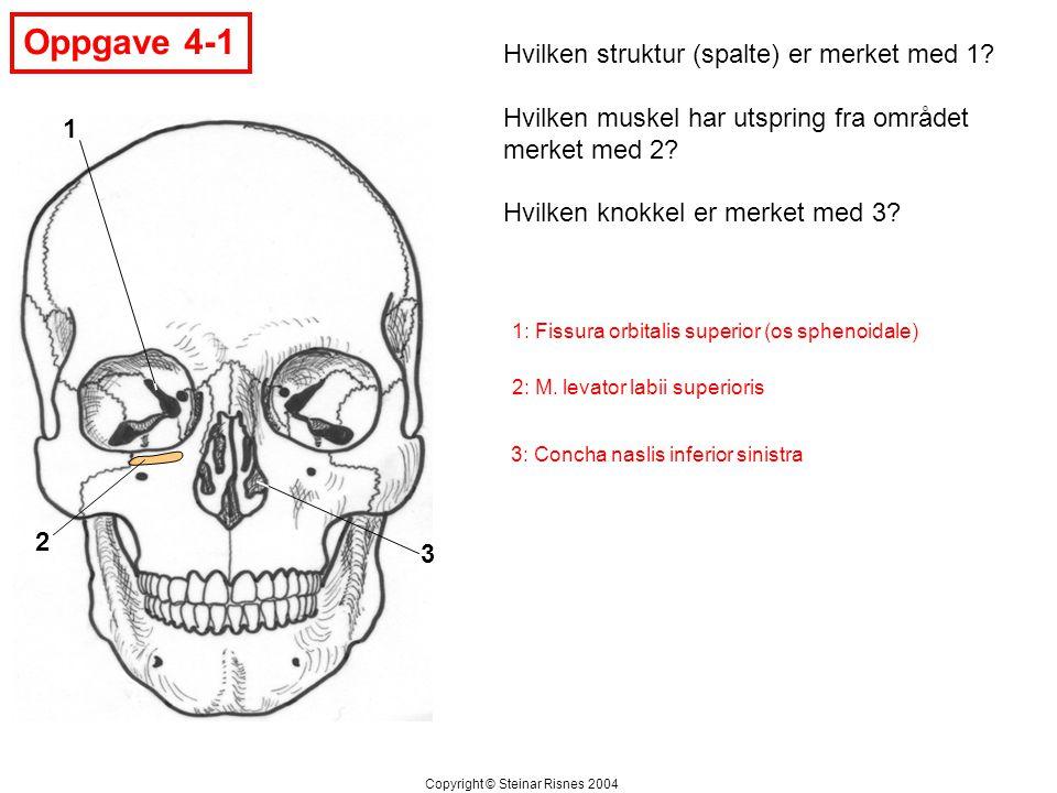 Oppgave 4-1 Hvilken struktur (spalte) er merket med 1