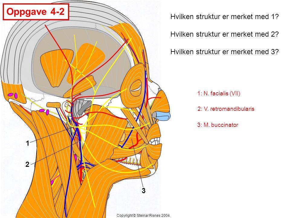 Oppgave 4-2 Hvilken struktur er merket med 1