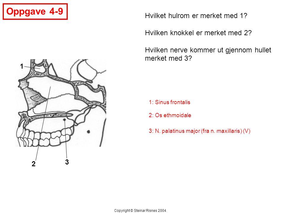 Oppgave 4-9 Hvilket hulrom er merket med 1
