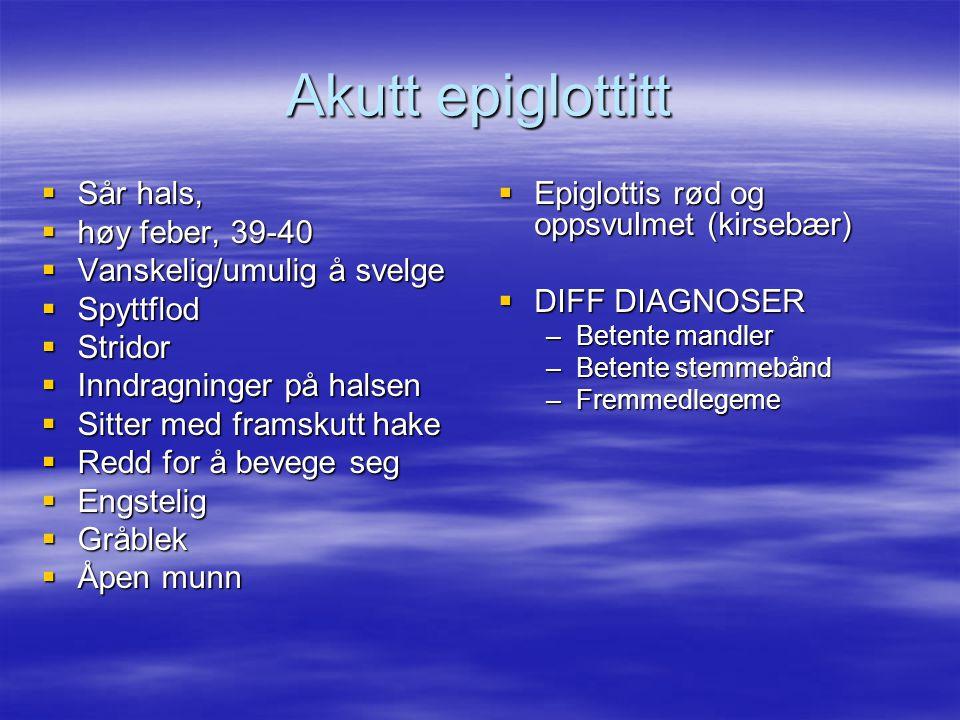 Akutt epiglottitt Sår hals, høy feber, 39-40 Vanskelig/umulig å svelge