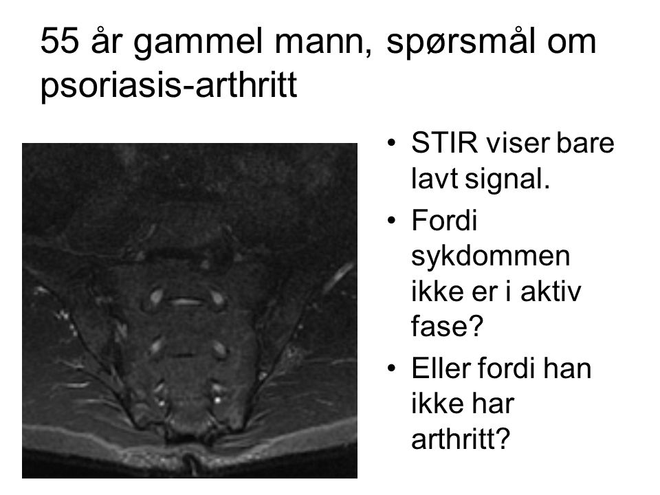 55 år gammel mann, spørsmål om psoriasis-arthritt