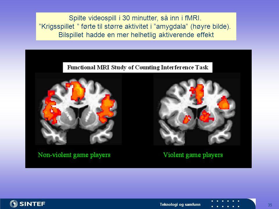 Spilte videospill i 30 minutter, så inn i fMRI.