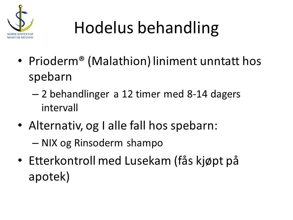 Hodelus behandling Prioderm® (Malathion) liniment unntatt hos spebarn