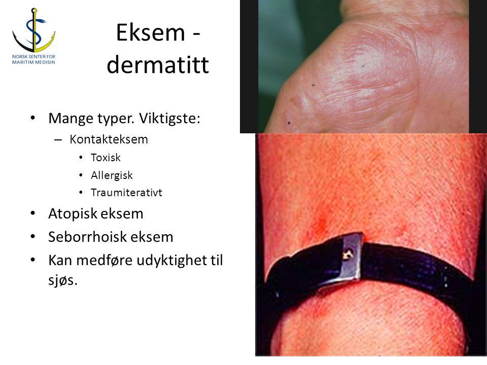 Eksem - dermatitt Mange typer. Viktigste: Atopisk eksem
