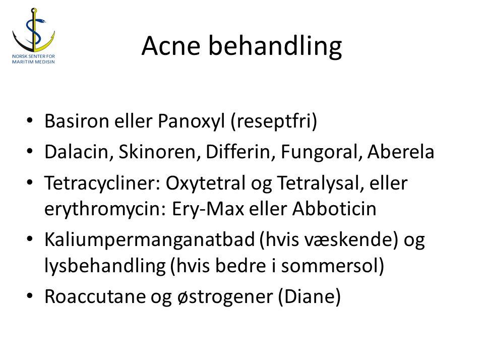 Acne behandling Basiron eller Panoxyl (reseptfri)