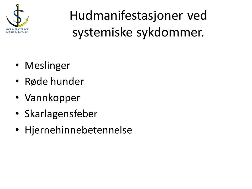 Hudmanifestasjoner ved systemiske sykdommer.