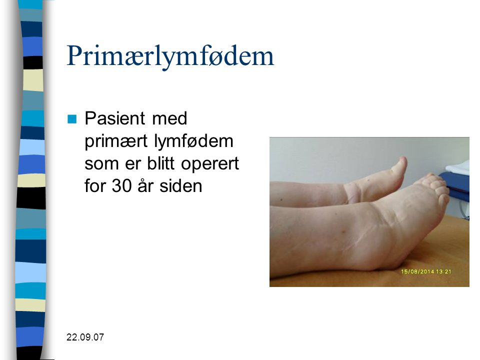 Primærlymfødem Pasient med primært lymfødem som er blitt operert for 30 år siden 22.09.07
