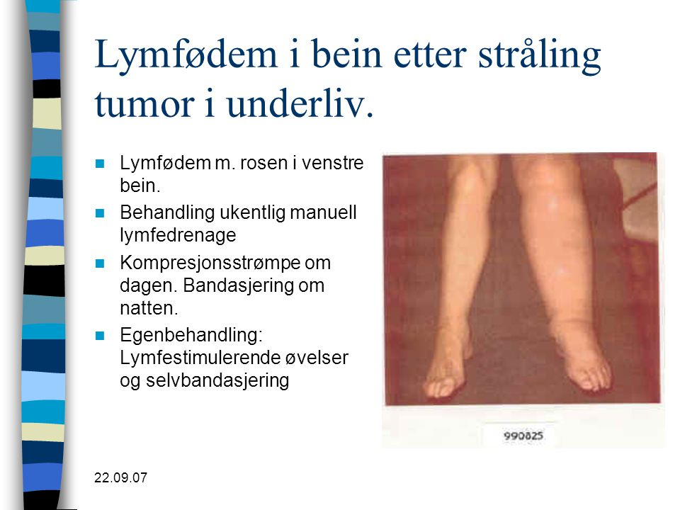 Lymfødem i bein etter stråling tumor i underliv.