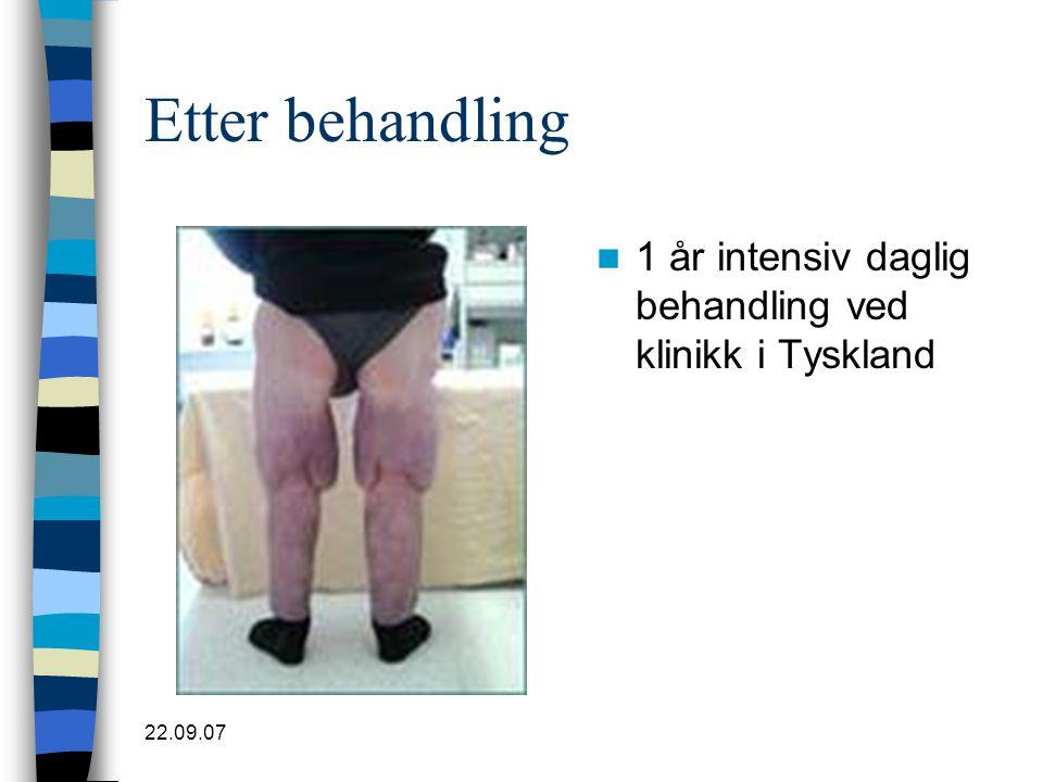 Etter behandling 1 år intensiv daglig behandling ved klinikk i Tyskland 22.09.07
