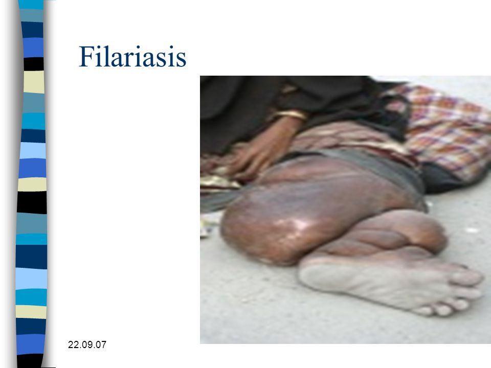 Filariasis Beinlymfødem 22.09.07