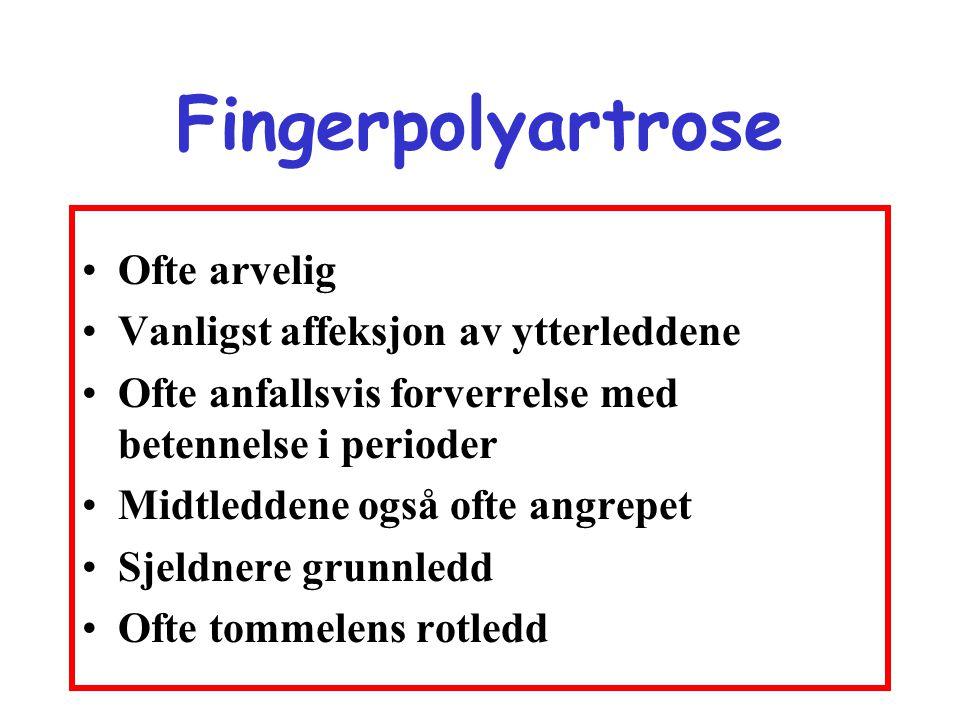 Fingerpolyartrose Ofte arvelig Vanligst affeksjon av ytterleddene