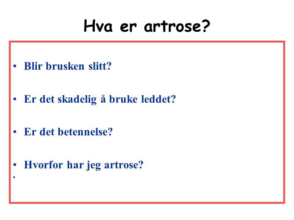 Hva er artrose Blir brusken slitt Er det skadelig å bruke leddet