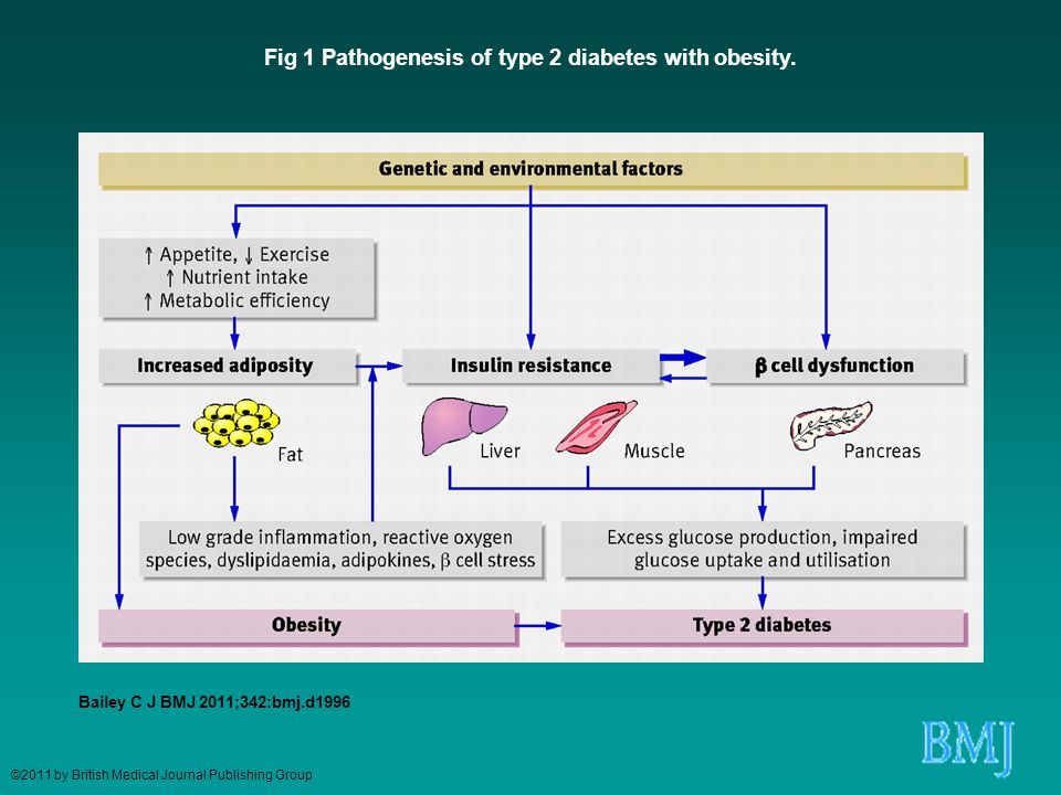 Fig 1 Pathogenesis of type 2 diabetes with obesity.