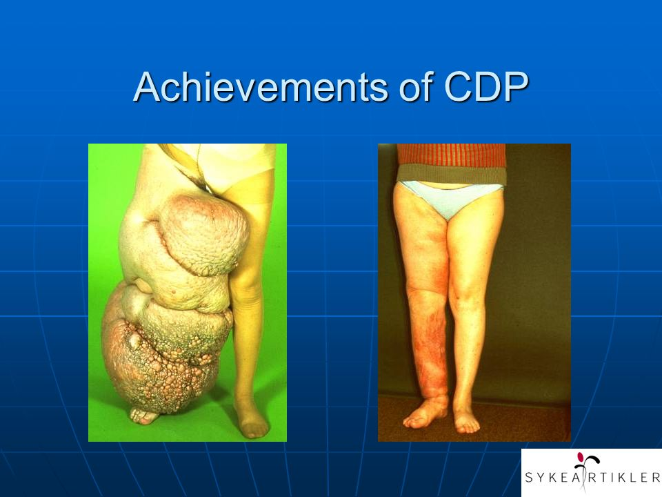 Achievements of CDP