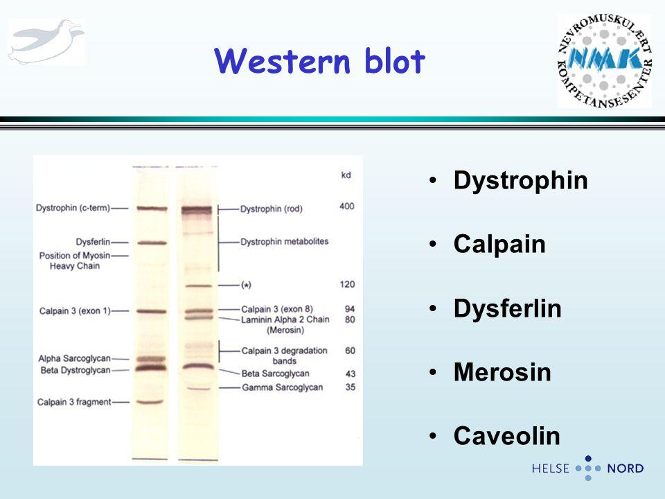 Western blot Dystrophin Calpain Dysferlin Merosin Caveolin