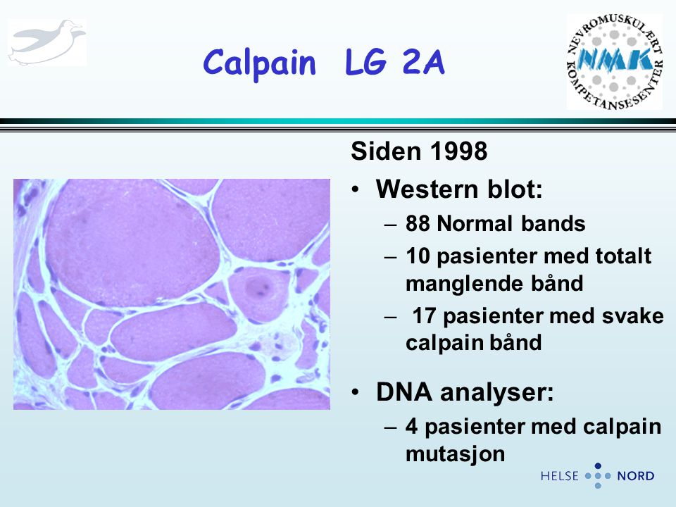 Calpain LG 2A Siden 1998 Western blot: DNA analyser: 88 Normal bands