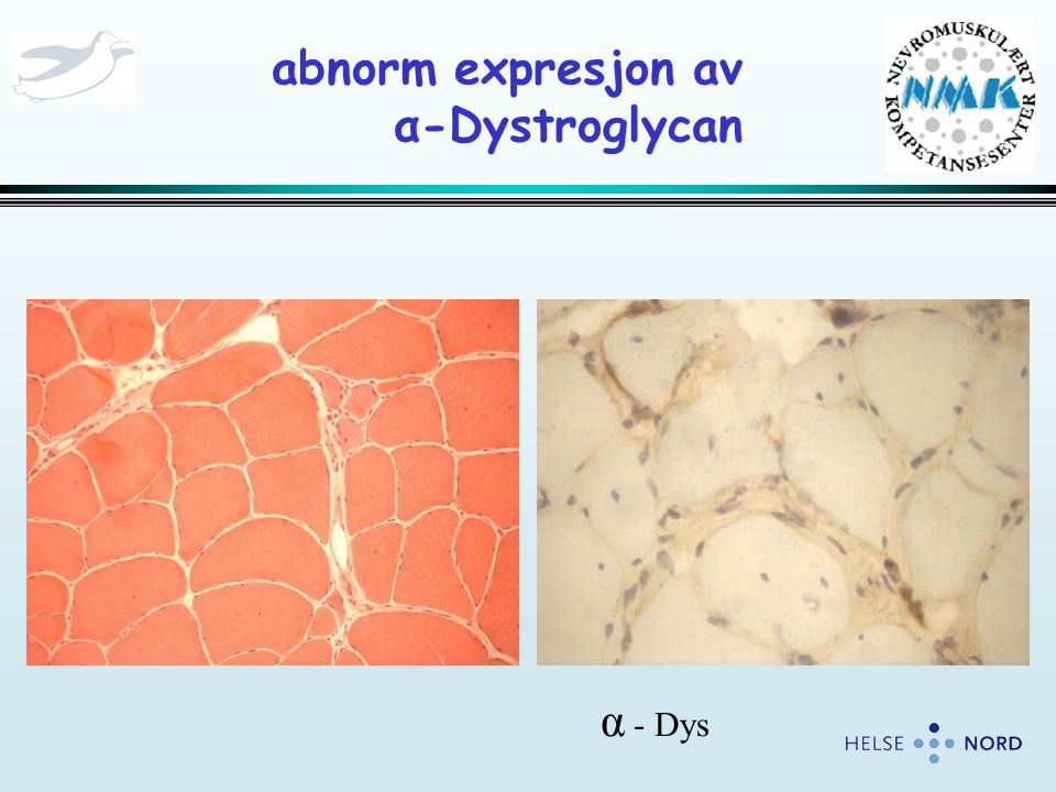 abnorm expresjon av α-Dystroglycan