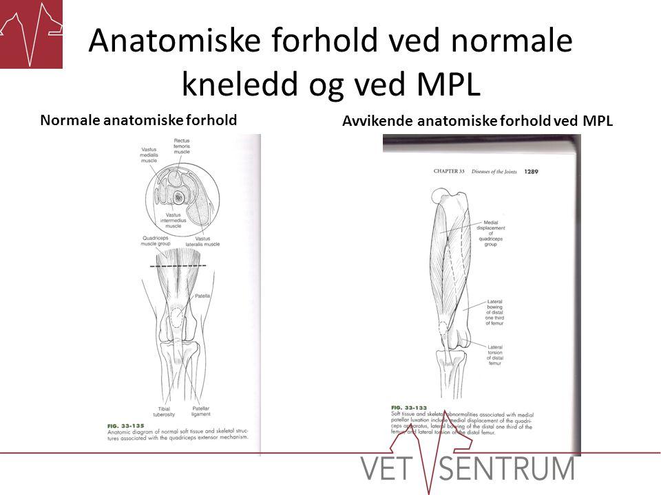 Anatomiske forhold ved normale kneledd og ved MPL