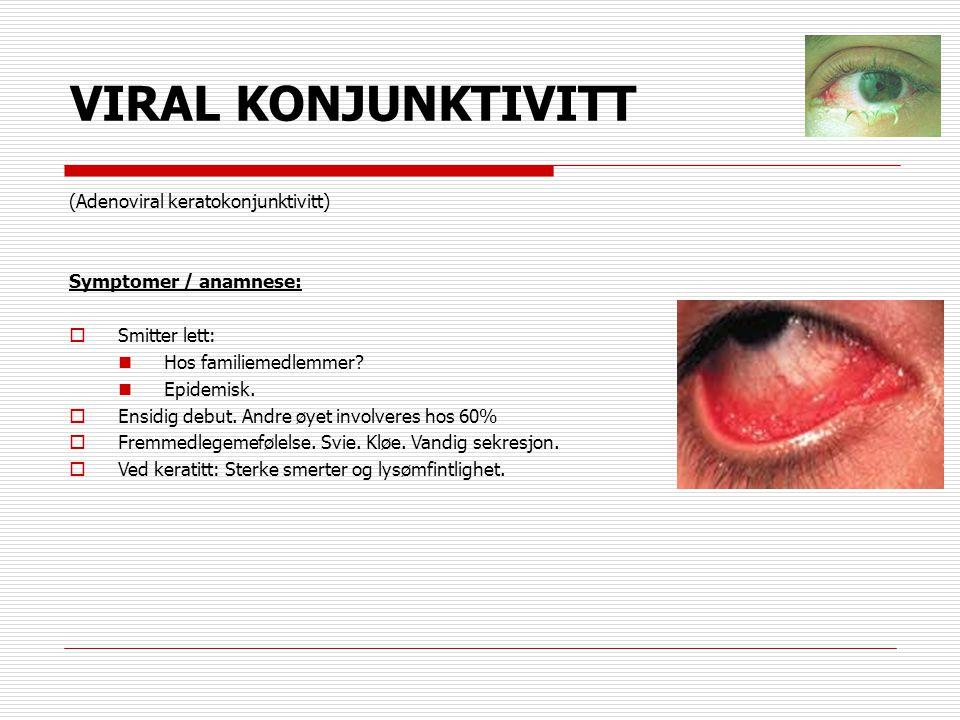 VIRAL KONJUNKTIVITT (Adenoviral keratokonjunktivitt)