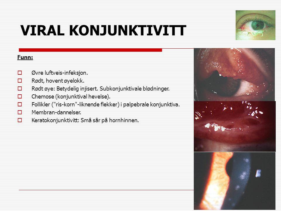 VIRAL KONJUNKTIVITT Funn: Øvre luftveis-infeksjon.