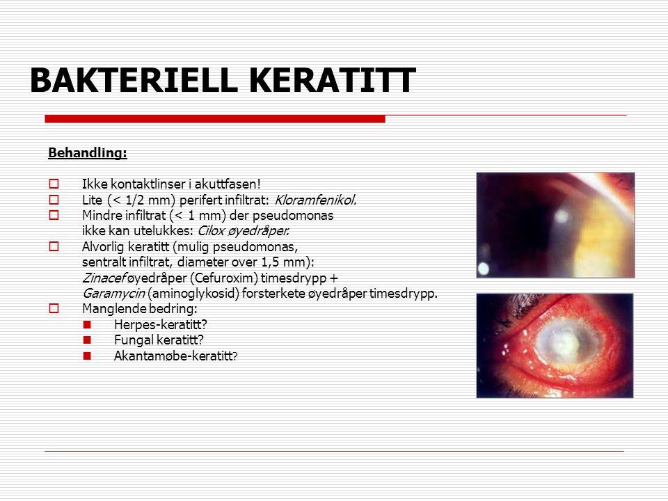 BAKTERIELL KERATITT Behandling: Ikke kontaktlinser i akuttfasen!