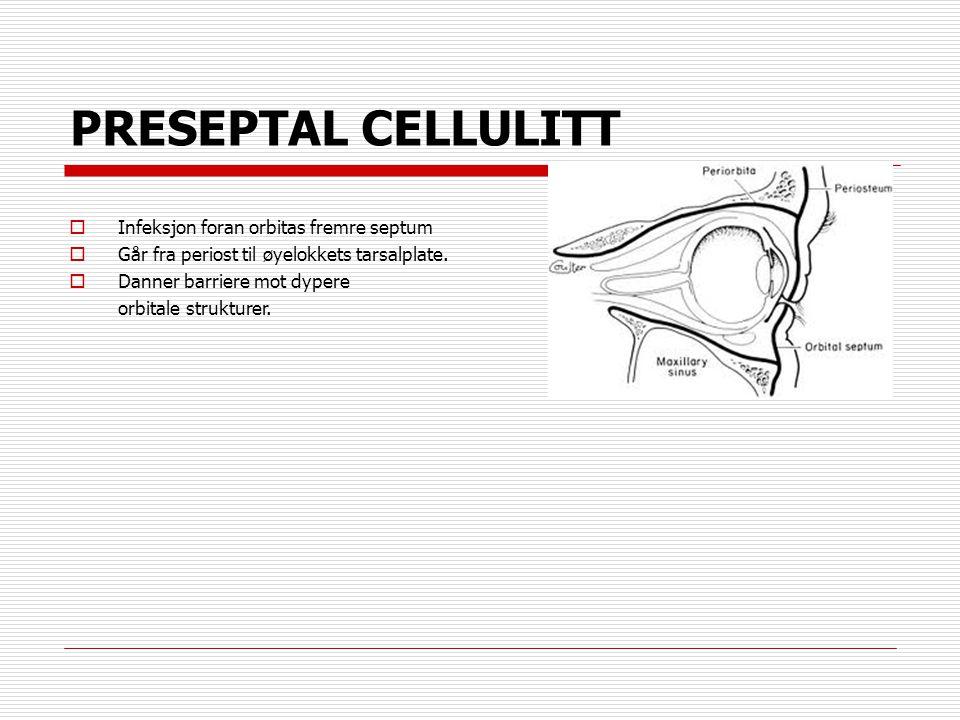 PRESEPTAL CELLULITT Infeksjon foran orbitas fremre septum