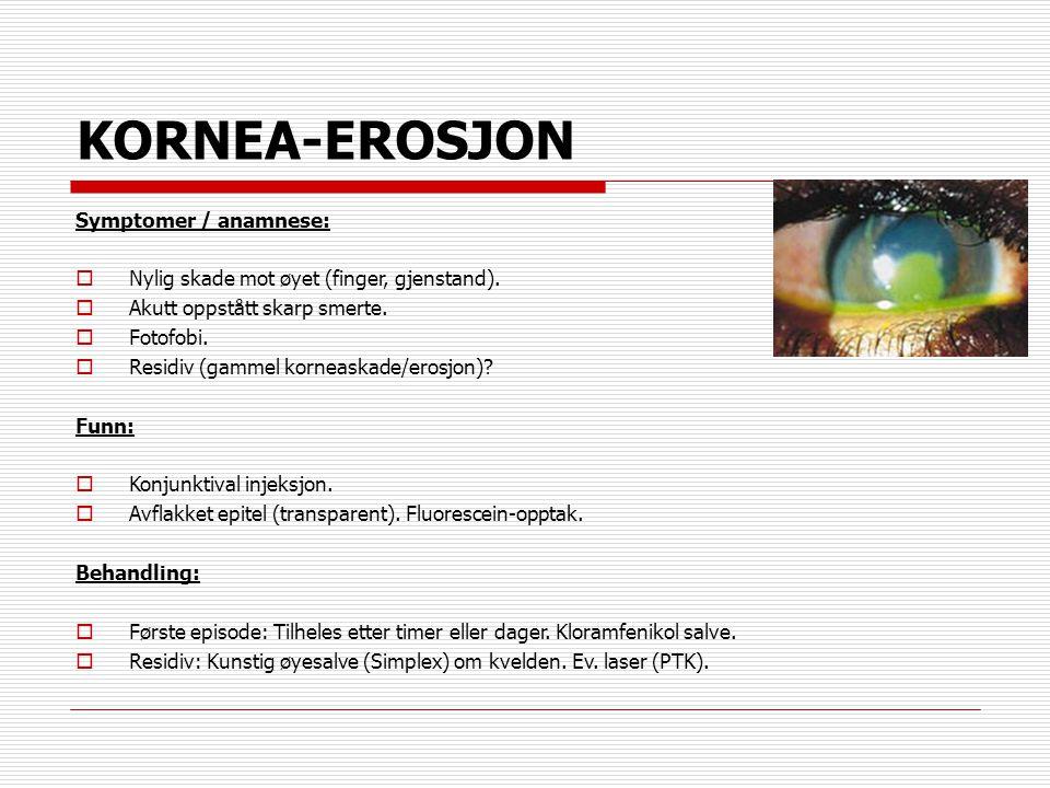 KORNEA-EROSJON Symptomer / anamnese: