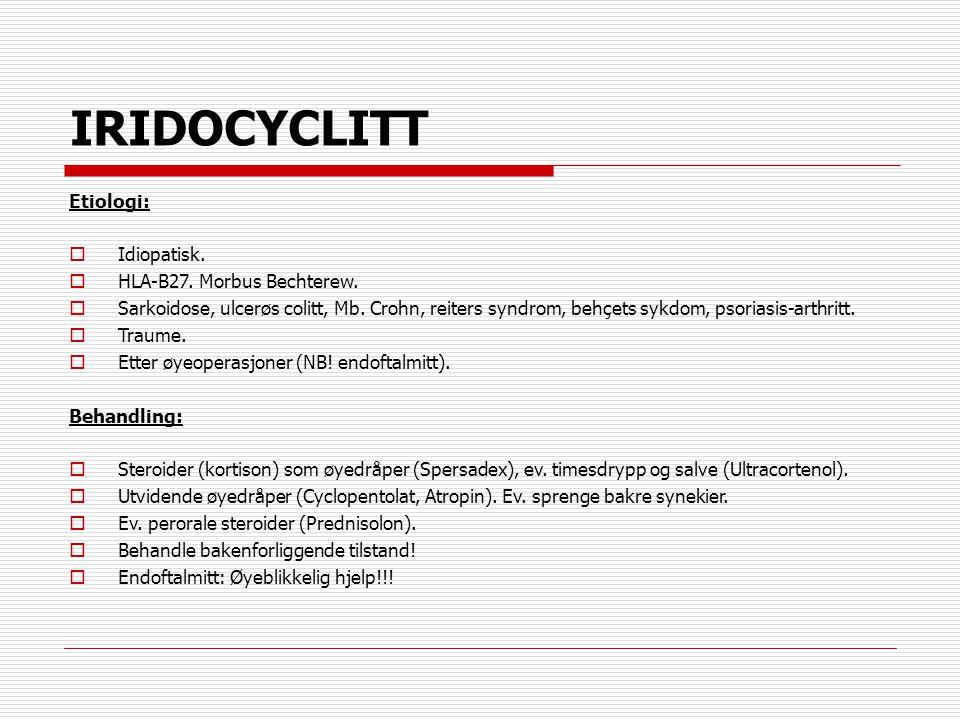 IRIDOCYCLITT Etiologi: Idiopatisk. HLA-B27. Morbus Bechterew.