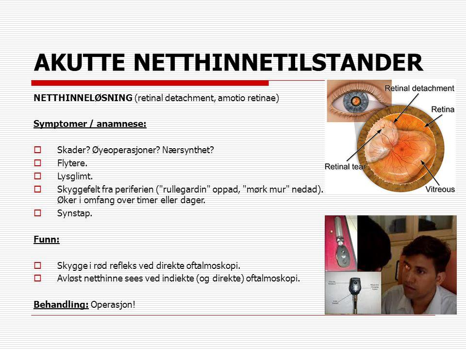 AKUTTE NETTHINNETILSTANDER