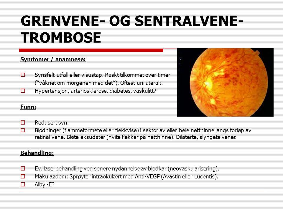 GRENVENE- OG SENTRALVENE-TROMBOSE