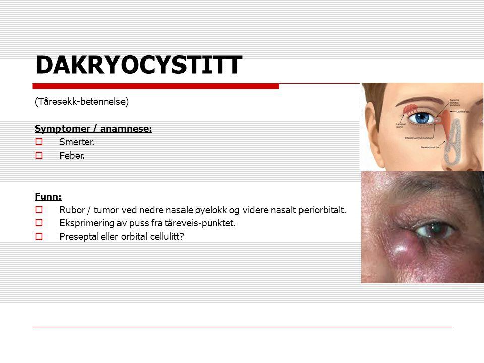 DAKRYOCYSTITT (Tåresekk-betennelse) Symptomer / anamnese: Smerter.