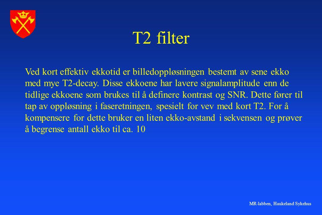 T2 filter Ved kort effektiv ekkotid er billedoppløsningen bestemt av sene ekko. med mye T2-decay. Disse ekkoene har lavere signalamplitude enn de.
