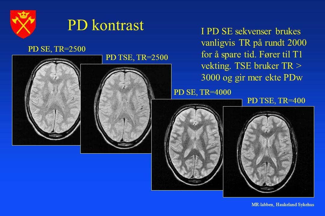 PD kontrast I PD SE sekvenser brukes vanligvis TR på rundt 2000