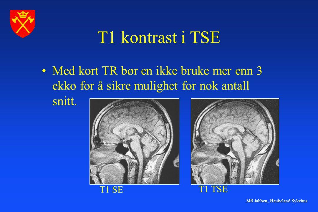 T1 kontrast i TSE Med kort TR bør en ikke bruke mer enn 3 ekko for å sikre mulighet for nok antall snitt.